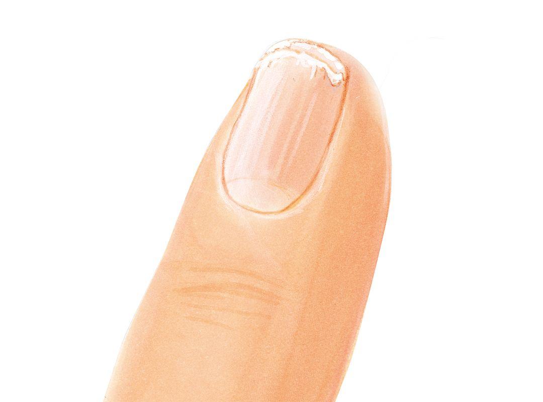 Jessica Nails Analysis Peeling